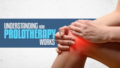 About Prolotherapy